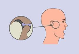 Mal di testa destra, occhi e orecchio - Epilessia February